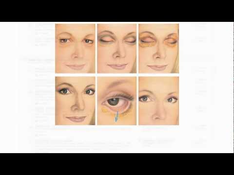 Eyelid Surgery - Blepharoplasty - Plastic Surgery in Costa Rica