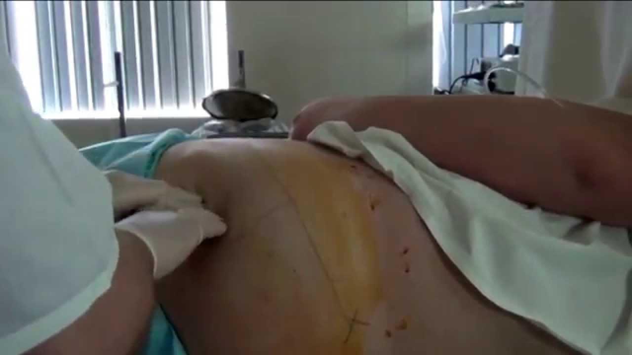 Блокада при защемлении седалищного нерва
