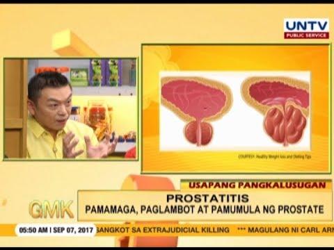 17 vagyok én vagyok a prostatitis)