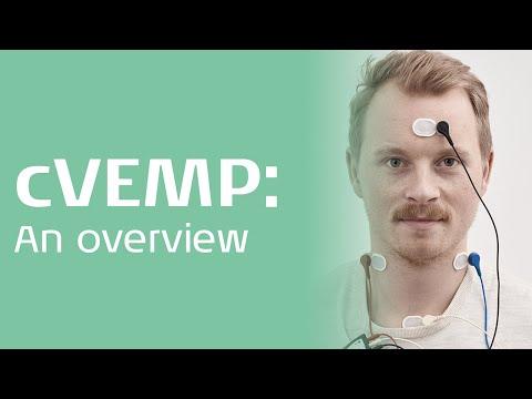 cVEMP - An overview
