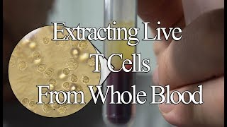 Extracting and Culturing Live T Cells From Whole Blood (And lactose updates)