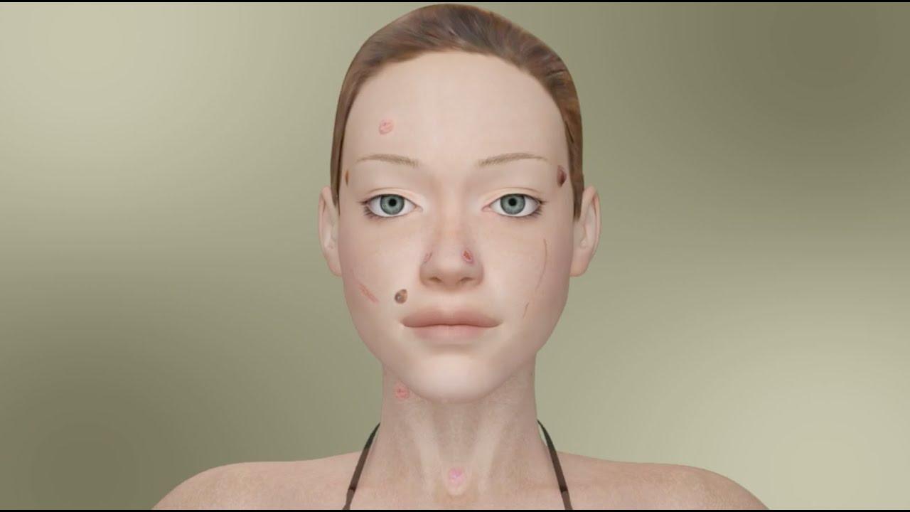facial lesions #9
