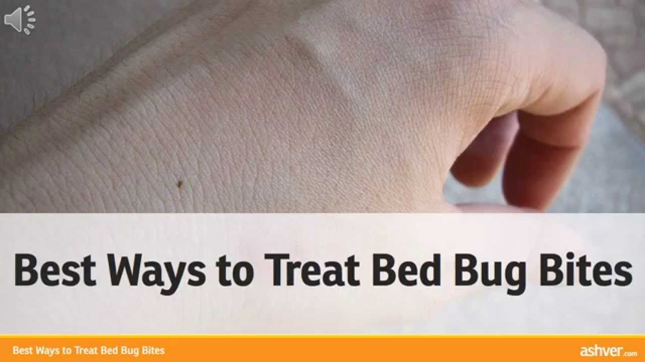 Best Ways To Treat Bed Bug Bites Youtube