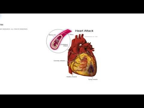 Streptokinase - the revolutionary drug that changed treatment of heart attacks