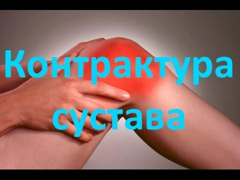 Разработка локтевого сустава после перелома: восстановление
