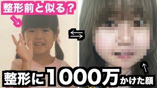 1000万円分変わった顔に「子どもフィルター」かけたら実際の幼少期の顔と比べてどうなる?