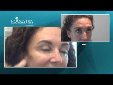 Rejuvenecimiento de la mirada - Aplicación de Toxina Botulinica (14025)
