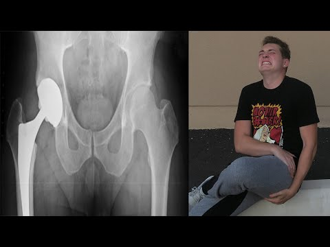 I BROKE MY HIP!? - FUNNIEST / MOST PAINFUL CHALLENGE EVER! - FAIL