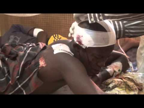 REGAIN DE VIOLENCES A BANGUI