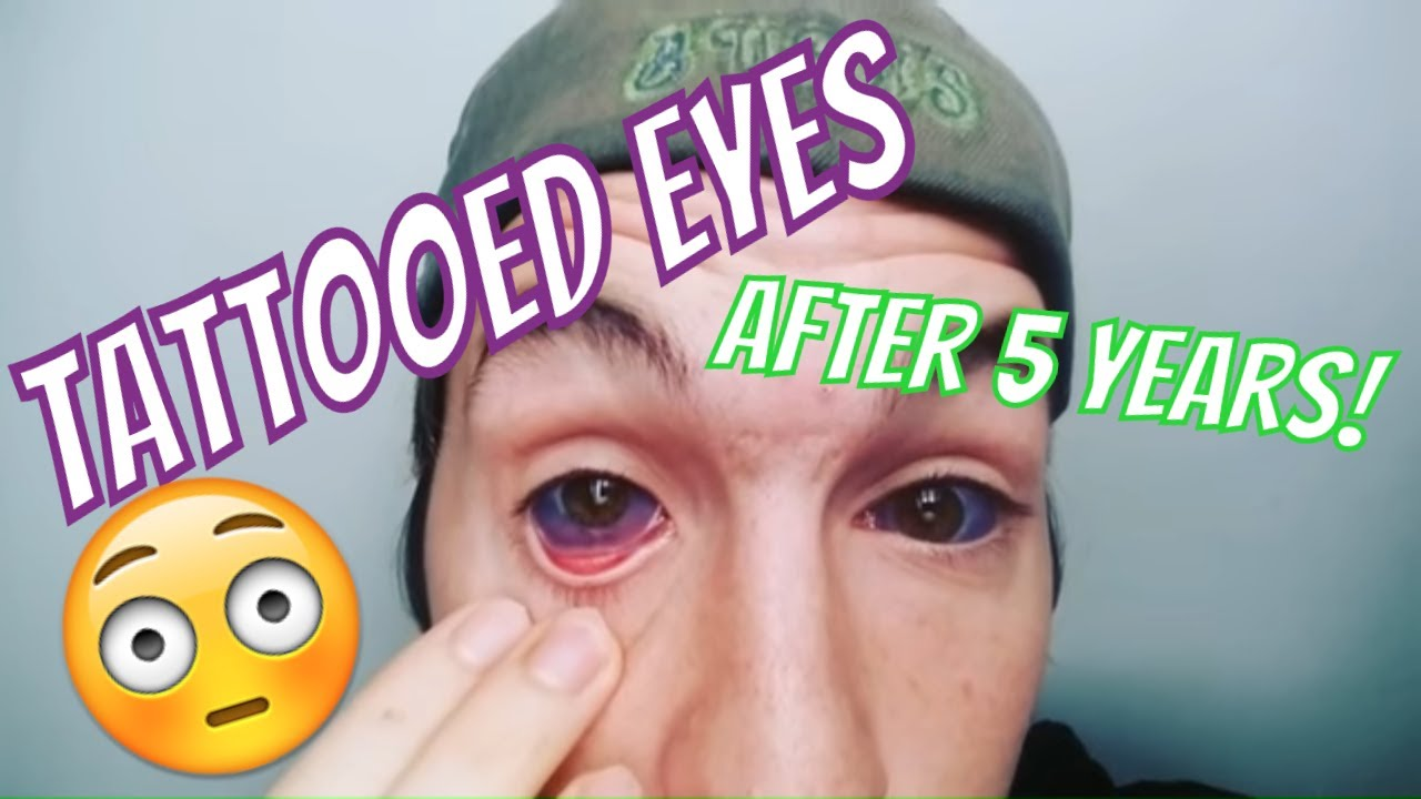 Tattooed eyes after 5 years youtube for Tattoo your eyes