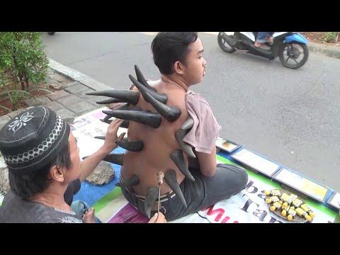 Schröpfbehandlung mit Büffelhörnern in Indonesien