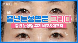 하안검수술후기 눈밑지방재배치후기 중년눈성형 전후후기영상