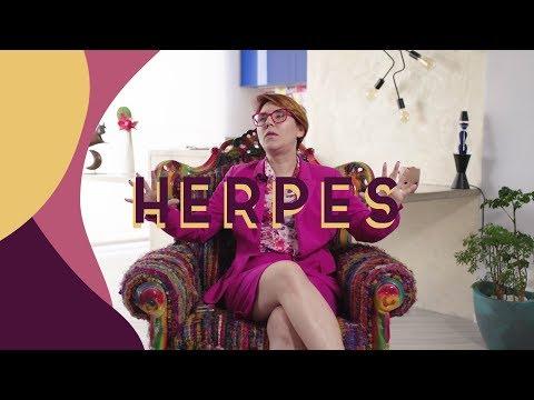herpes!! tenho ou nao