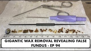 GIGANTIC EAR WAX REMOVAL REVEALING FALSE FUNDUS - EP 94