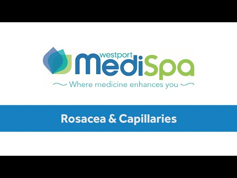 Rosacea & Broken Capillaries Laser Treatment - Westport, CT