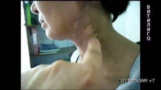 видео Витилиго: фото, причины, симтомы и лечение