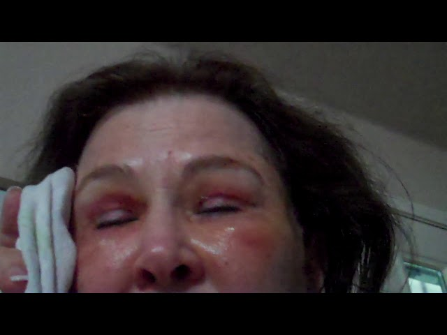 Dallas Facelift/Fat Transfer/Upper & Lower Eyelid Blepharoplasty/Eyelid Laser Recovery Video