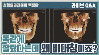 턱끝 ㅅ절골후 왼쪽 턱…