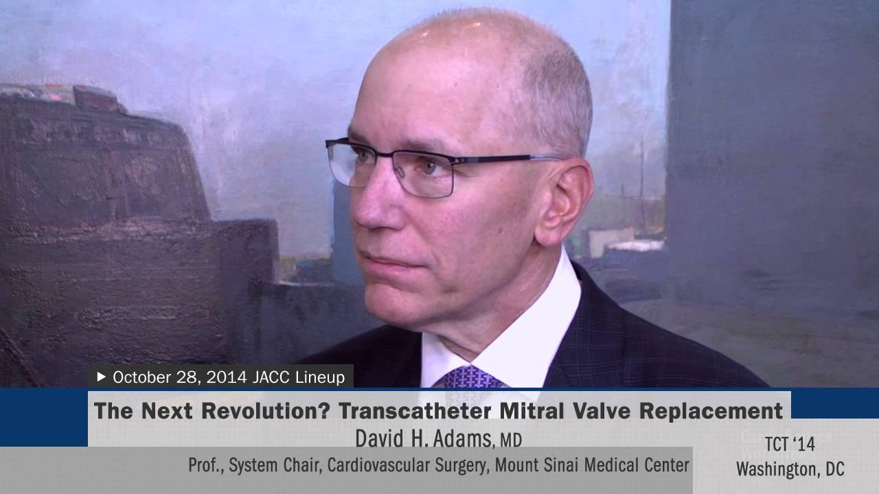 The Next Revolution? Transcatheter Mitral Valve Replacement
