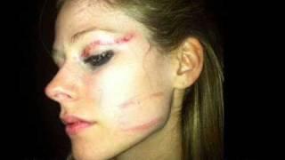 Avril Lavigne fue brutalmente agredida