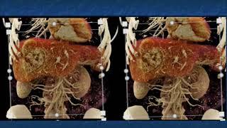Pathology 763 c Malignant Melanoma Microscopy Histology skin Melanin Junctional Activity tumor cells.