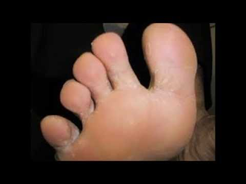 How To Cure Foot Fungus With Home Remedies  – How Long To Get Rid Of Foot Fungus