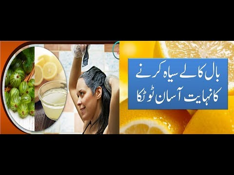 Jin Logo K Bal Juldi Safeed Hote Hai Un K Liye Mofeed Video Zaaror Dikhe