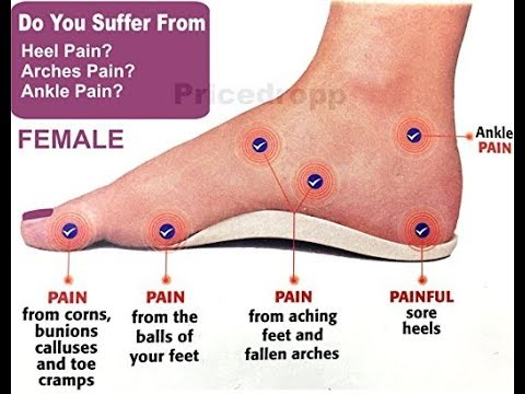 Flat feet: Feet, Knee, and Back Pain - by Doc Willie Ong