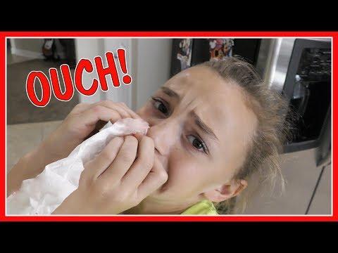 KAYLA GETS A BLOODY NOSE!