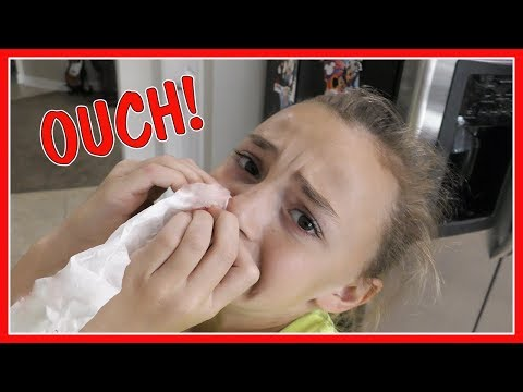 😱KAYLA GETS A HURT NOSE!😱 | We Are The Davises