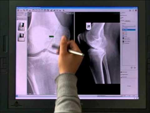 VivoLab: Computed Radiography with VivoLab
