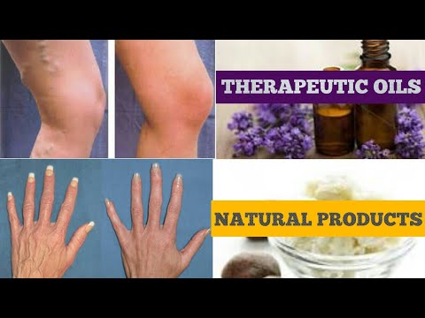 how to get rid of vericose veins spider veins using natural
