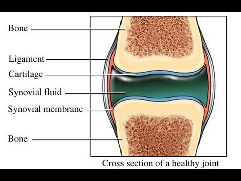 Usmle medical video lectures about synovial fluid analysis by usmle medical video lectures about synovial fluid analysis by usmleteam youtube ccuart Choice Image