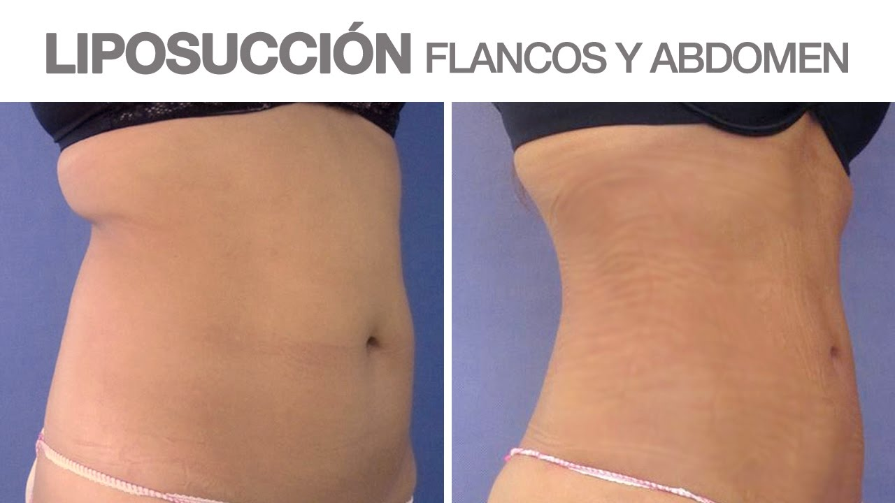 Lipo de abdomen y espalda