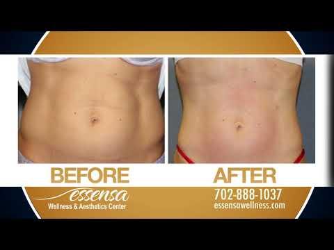 Body Contouring, Skin Tightening, & Cellulite Reduction @ Essensa Las Vegas