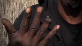 Pit Bull Bites Off Trainer's Finger