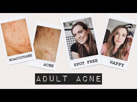 ADULT ACNE AND ROACCUTANE | MEGAN TAYLOR