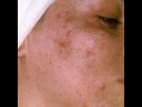 how to clear congested skin