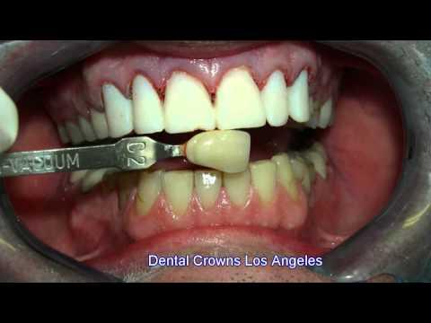 Dental Crowns Los Angeles 5-19-11