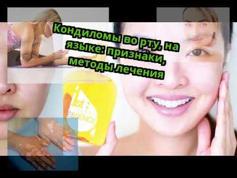 Кондиломы во рту, на языке: признаки, методы лечения