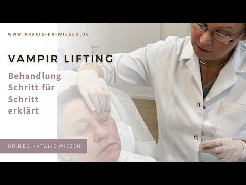 Vampirlifting (mit Behandlungsvideo) - Erklärt von Dr. med. Natalie Wiesen