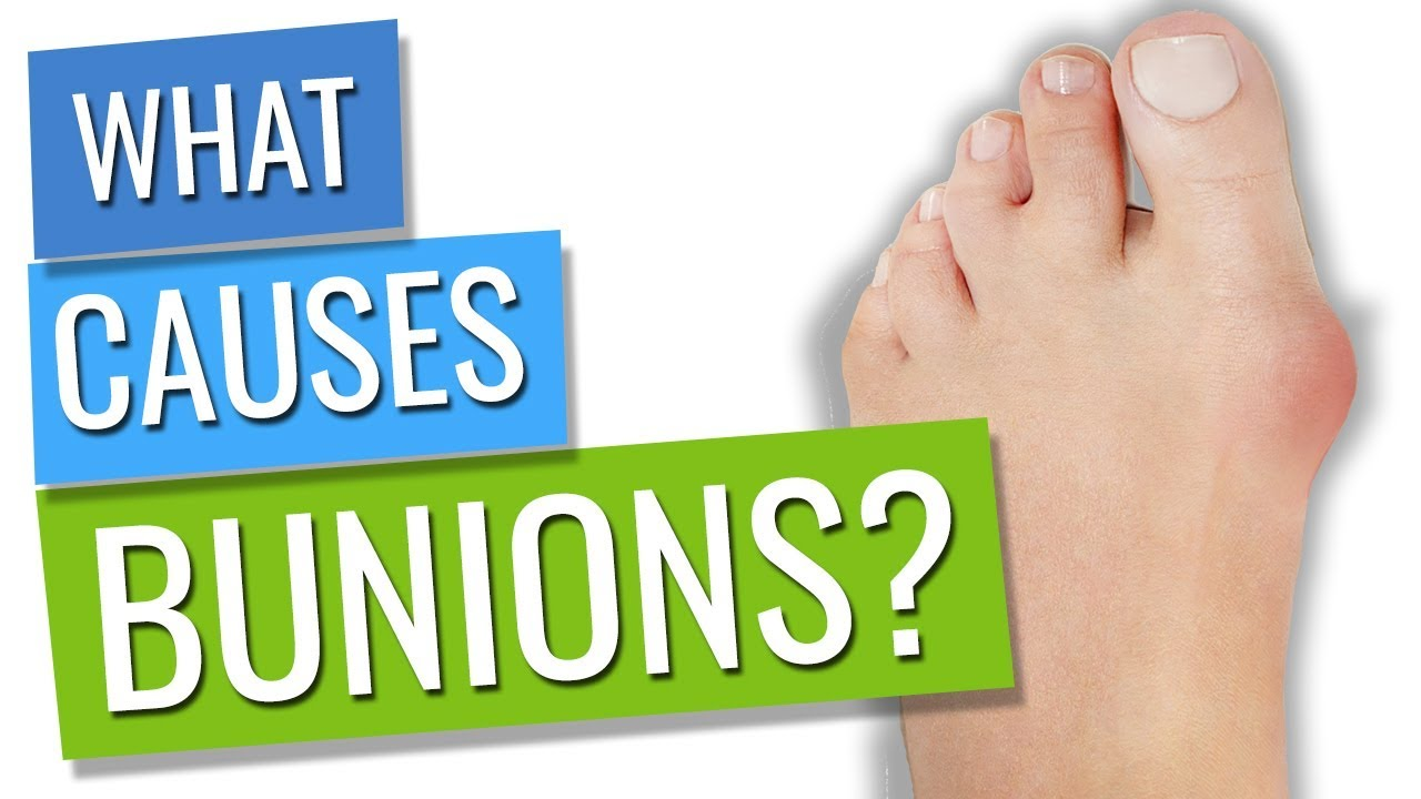 Bunions! What causes them? - YouTube