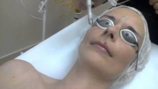 Waterpeel, Face Lab, peeling wodny, oczyszczanie, złuszczanie bezinwazyjne, Laser-Med, Bydgoszcz
