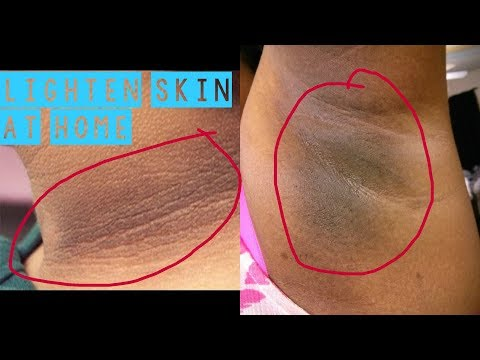 Naturally Lighten Skin at Home FAST | Get rid of dark Neck, Underarms, Mouth| Remove Pigmentation