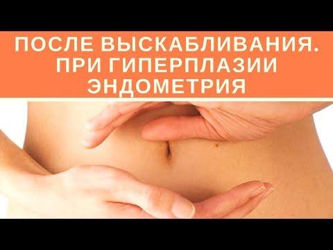 Что будет После Выскабливания при Гиперплазии Эндометрия?