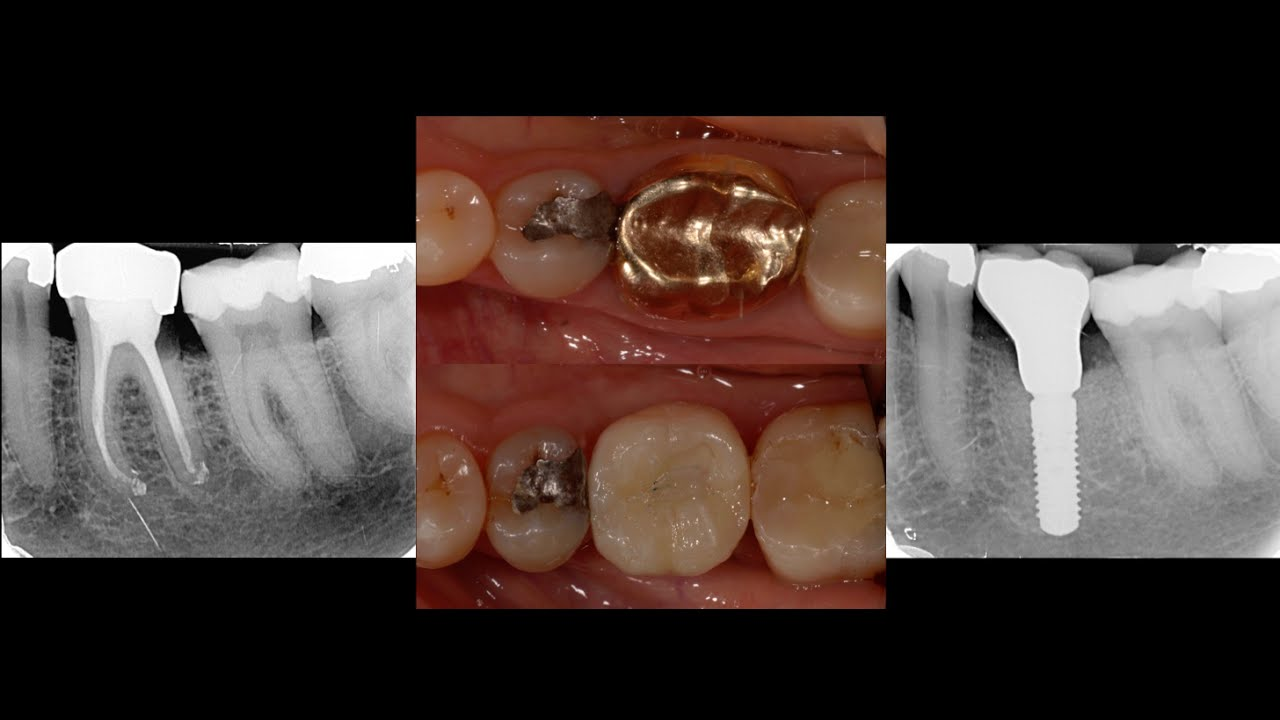 molar tooth implant - HD 2912×1133
