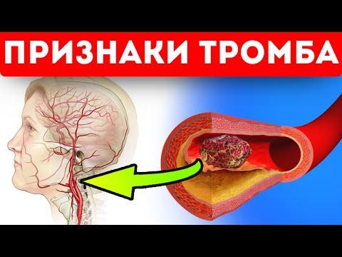 Опасные признаки тромба в сосудах