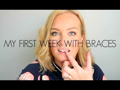 VLOG | MY FIRST WEEK WITH BRACES