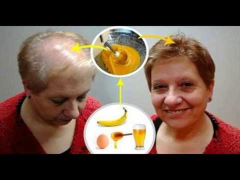 recipe-to-grow-your-hair-leave-all-doctors-with-open-mouth-|-stop-hair-loss-|hair-restoration