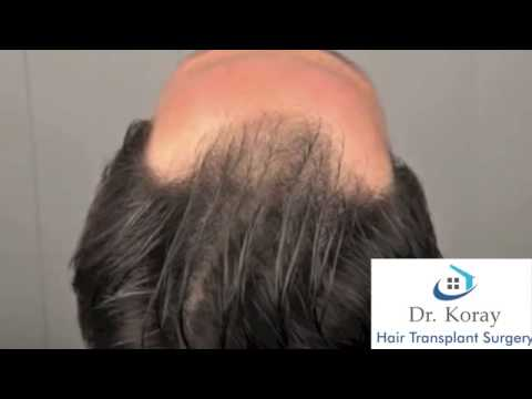 Dr. Erdogan Koray Asmed Clinic www.hairtransplantcenter-turkey.com Turkey Istanbul 2400 Gr